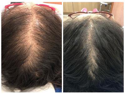 מיכל אוחיון לפני ואחרי הטיפול של בטהייר