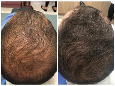 אבי אמזלג לפני ואחרי הטיפול של בטהייר